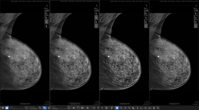 Another benefit of tomosynthesis is reducing patients' radiation exposure, which is especially important if they need additional testing.