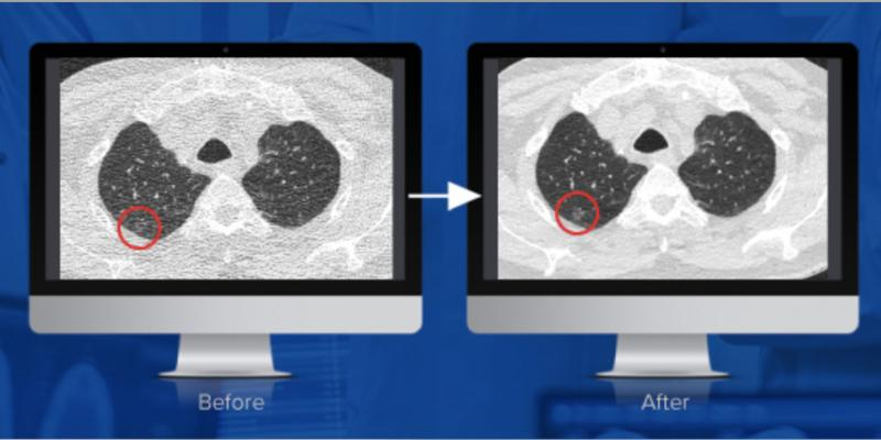 Studies conducted by Mass General Hospital and University of Virginia have concluded that PixelShine, a disruptive technology from AlgoMedica, significantly improved the diagnostic quality of CT scans acquired at reduced radiation dose. Here, you can see before and after noise reduction is applied.