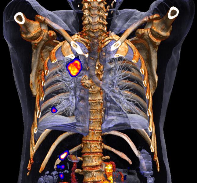Sanovas, lung cancer screening, peripheral tumors, PDT, Medicare