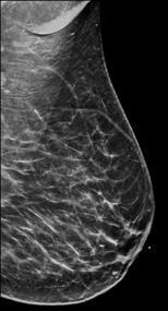 BI-RADS Category B: Scattered fibroglandular tissue. Dense Breasts