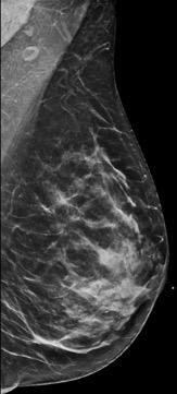 BI-RADS Category C: Heterogeneously dense. Dense Breasts can hide breast cancers.
