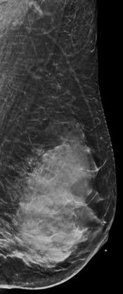 BI-RADS Category D: Extremely dense (most amount of fibroglandular tissue). Dense Breasts hide breast cancers.