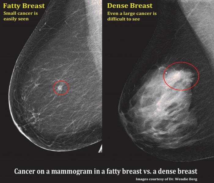 A comparision of a small breast cancer found in a patient without dense breast tissue (left), and a tumor found in a woman with dense fibroglandular tissue. Fibroglandular Dense Breast tissue Comparison