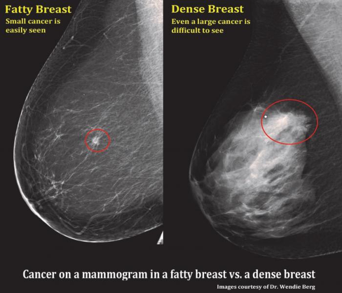 Dense Breast Comparison, DenseBreast-info.org, fibroglandular density comparison