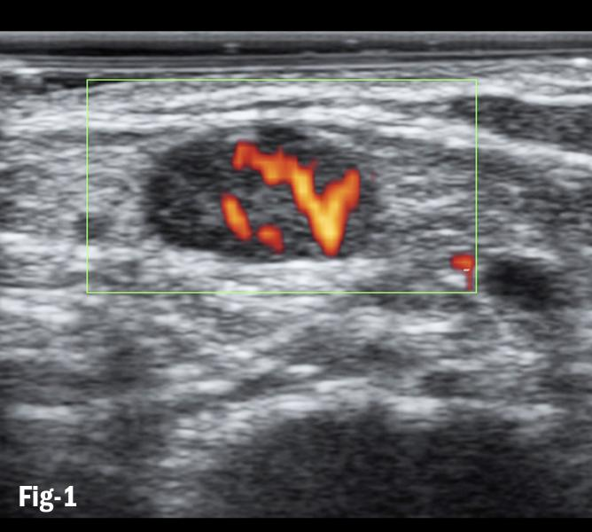 Figure 1. Doppler flows in subpleural consolidation shows smoothly dilated branching arteries