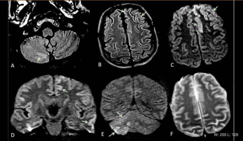 This is Figure 2 from the article in Radiology: Acute encephalopathy. A 60 year-old-man without history of seizures presenting with convulsion. (A-B) Multifocal areas of FLAIR hyperintensity in the right cerebellum (arrows in A), left anterior cingular cortex and superior frontal gyrus (arrows in B). (C-D) Restricted diffusion in the left anterior cingulate cortex, superior frontal and middle temporal gyrus (arrows in D) and right cerebellum (arrows in E), consistent with cerebellar diaschisis. F)  #COVID19