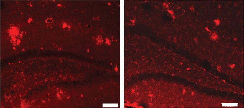 MR guided focused ultrasound, Alzheimer's, mice, contrast media