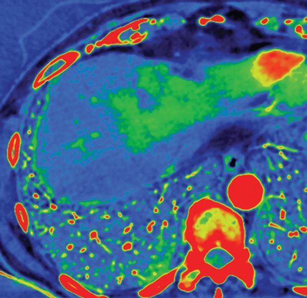 GE's Gemstone Spectral Imaging technology (above) can help classify enhancing and un-enhancing lesions. The above image depicts a liver lesion with iodine in the arterial phase.
