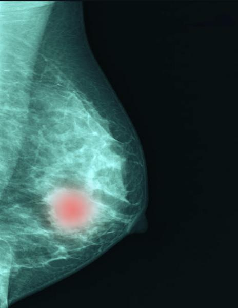 AI has the potential to help radiologists improve the efficiency and effectiveness of breast cancer imaging