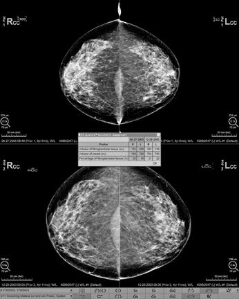 Hologic offers Quantra volumetric breast density assessment software, which uses details of the X-ray imaging chain to quantify fibroglandular tissue in the breast. It aggregates volumetric measurements from each view in a study into a concise assessment for each breast. Hologic, Quantra, volumetric breast density assessment