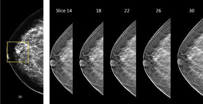 subareolar region of the breast