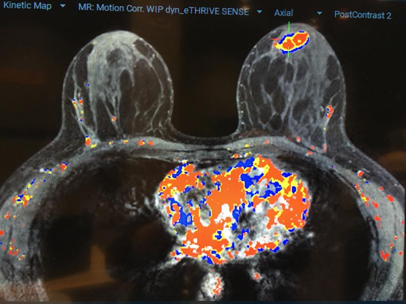 Qlarity Imaging's QuantX artificial intelligence (AI) software is used to assist radiologists by automating the assessment and characterization of breast lesions on contrast MRI. The system has FDA clearance. #RSNA #RSNA2019