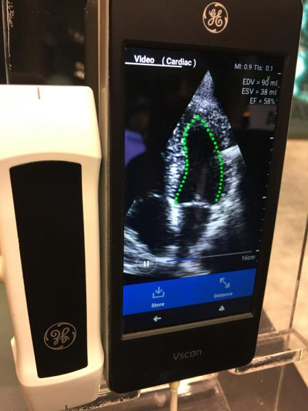 This is the LVivo auto ejection fraction app that uses artificial intelligence (AI) from the vendor Dia. The user opens the app in a couple seconds the AI defines to myocardial border and calculates EF for the LV. It is shown here integrated into the GE Healthcare VScan point of care ultrasound system (POCUS). The company also partners with Konica-Minolta to supply auto EF on its cardio PACS. #RSNA #RSNA19