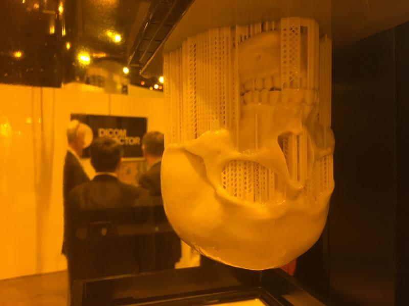 A 3-D printed skull still in the printer, created from a CT scan in the Envision TEC booth at RSNA 2019.