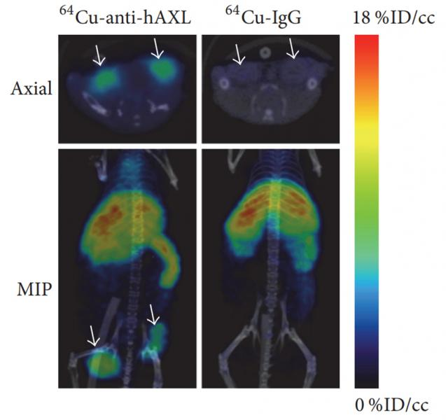 PET/CT images of MDA-MB-231 tumor xenografts in mice 24 hours after intravenous injection with 64Cu-anti-hAXL. Treatment group received daily 17-AAG injections and showed lower tumor uptake of 64Cu-anti-hAXL than the vehicle-treated control group.