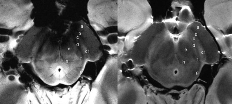 MRI Systems Parkinson's Disease Diagnosis