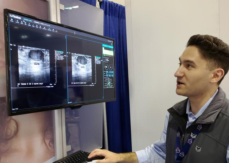 Koios software identifies suspicious lesions in ultrasound images during a demonstration on the exhibit floor of the Society for Breast Imaging (SBI)/American College of Radiology (ACR) Breast Imaging Symposium in April. Photo by Greg Freiherr