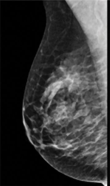 fibroglandular density, dense breasts, dense breast tissue