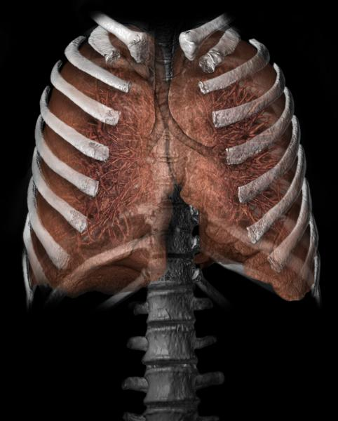 Lung 3D from CT scan