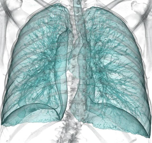 Lung Cancer CT Screening American College of Radiology
