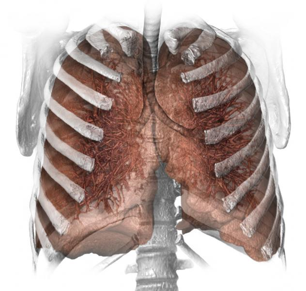 smoking, lung cancer, CT screening, guidelines