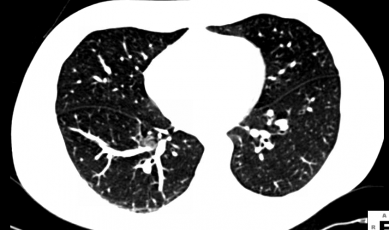 American College of Radiology Designated Lung Cancer Screening Center Program