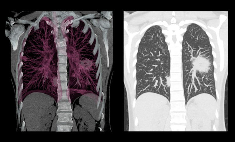 low-dose lung CT scan