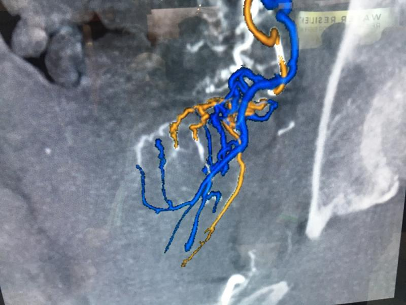 GE Healthcare's Neuo Assist artificial intelligence app, which automates image reconstruction and shows the interventional neurologist the optimal vascular access route to stoke. This has the potential to speed procedures in the cath lab.