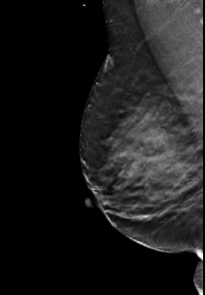fibroglandular densities, dense breasts,