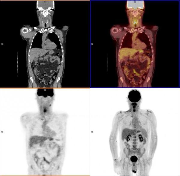 pet scan cancer