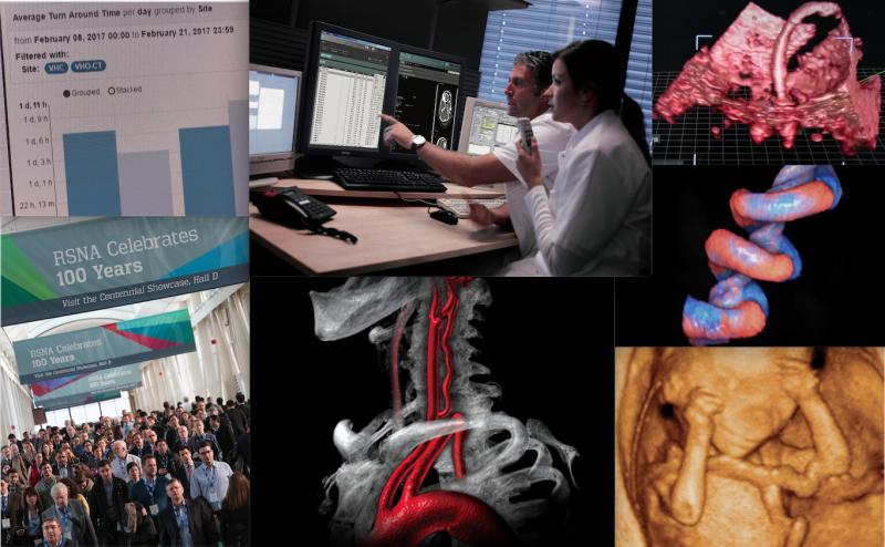 RSNA 2017 technology review of key radiology technology updates.