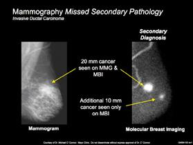 A comparison of breast cancer seen on mammography vs. molecular breast imaging (MBI).
