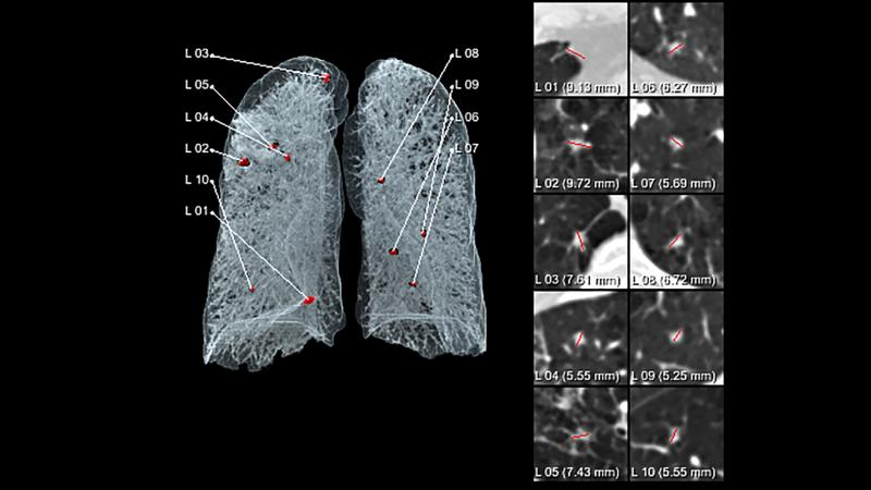 The Siemens AI-Rad Companion Chest CT provides automated visualization of chest images to support their reading and reporting.