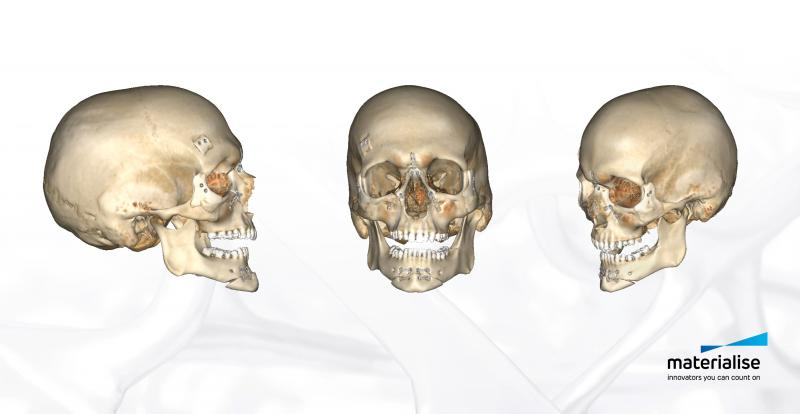 A fully guided system for bone fragment repositioning and fixation was unique to the patient's anatomy and helped position the medical tools with great precision, reducing the overall surgery time.