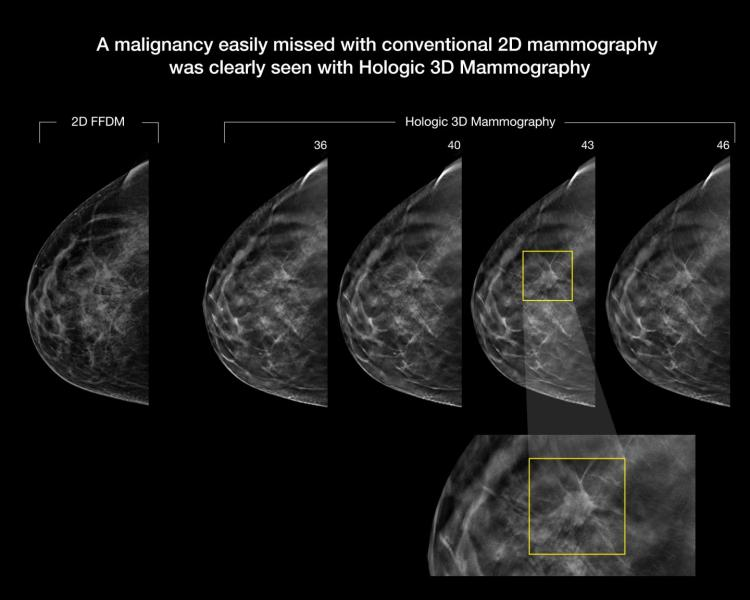 tomosynthesis, breast imaging