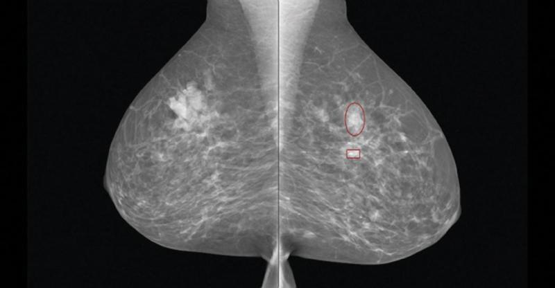 iCAD, iReveal, breast density