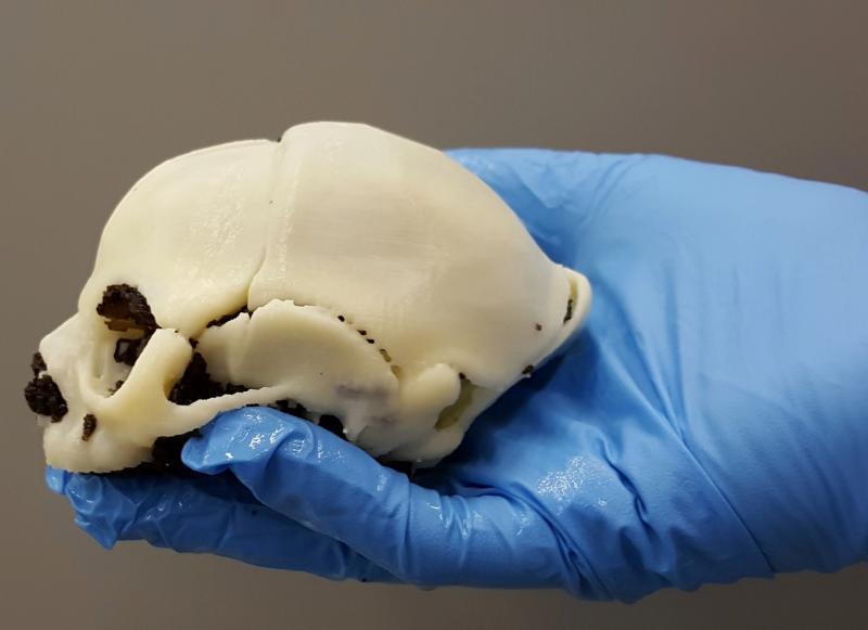 Zika virus, imaging zika, radiology of Zika, medical imaging of zika, 3D printed Zika skull