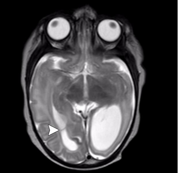 Zika virus, imaging zika, CT scans of Zika, MRI scans of zika, radiology of Zika, medical imaging of zika