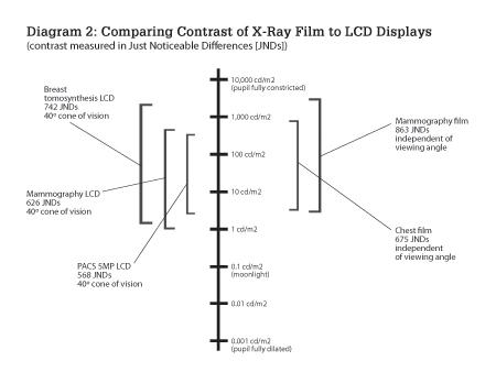 Comparing Contrast of X-Ray Film to LCD Displays