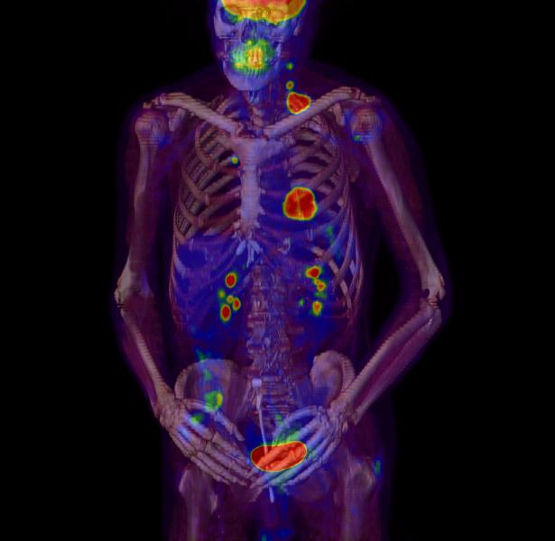 The Future of Radiation Oncology
