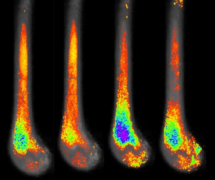 Imaging Fat of the Bone