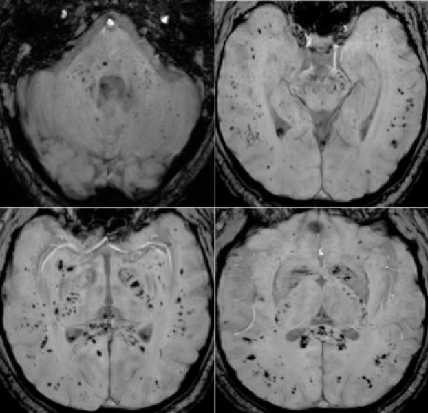 Figure 4. 57-year old man with pathological wakefulness after sedation. Extensive and isolated white matter microhemorrhages. Axial Susceptibility weighted imaging (SWI) (A, B, C, D): multiple microhemorrhages mainly affecting the subcortical white matter, corpus callosum, internal capsule, and cerebellar peduncles.