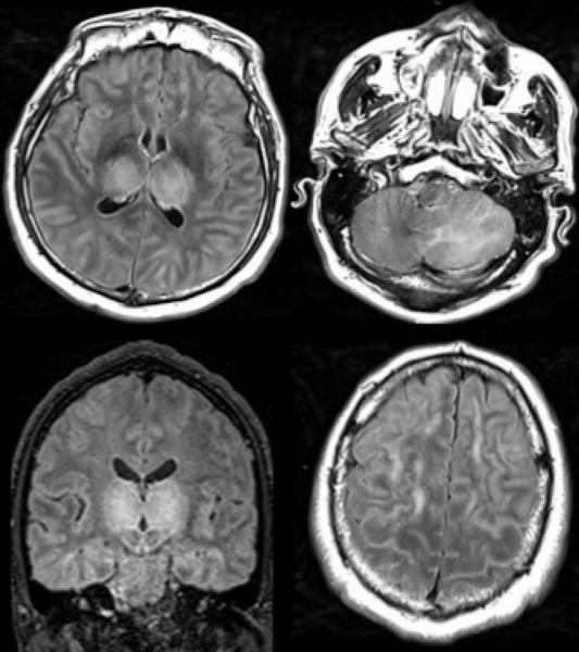 Figure 6. 51-year old man with impaired consciousness. Acute necrotizing encephalopathy. Axial FLAIR (A, C, D), and coronal FLAIR (B): bilateral FLAIR hyperintensity in both thalami (A, B), associated with involvement of the cerebellar (C), and cerebral (D) white matter. FLAIR = Fluid-attenuated inversion recovery