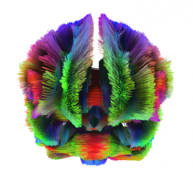 Diffusion tractography allows us to observe the white matter in the brain, which serve as communication pathways between different regions of the brain.