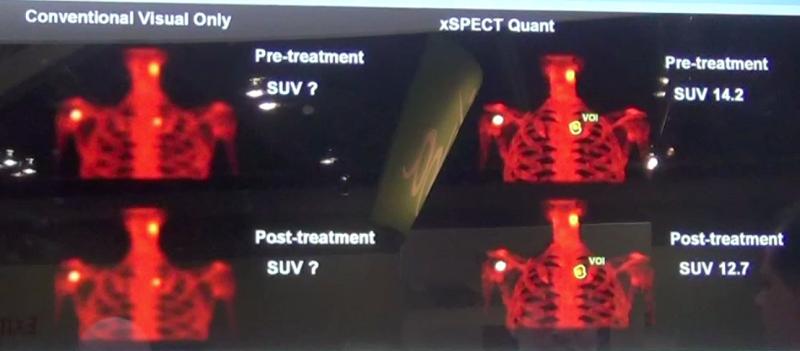 xSPECT, SPECT/CT, Siemens Intevo