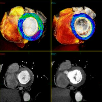 Toshiba CT Myocardial Perfusion Advanced Visualization CT Systems