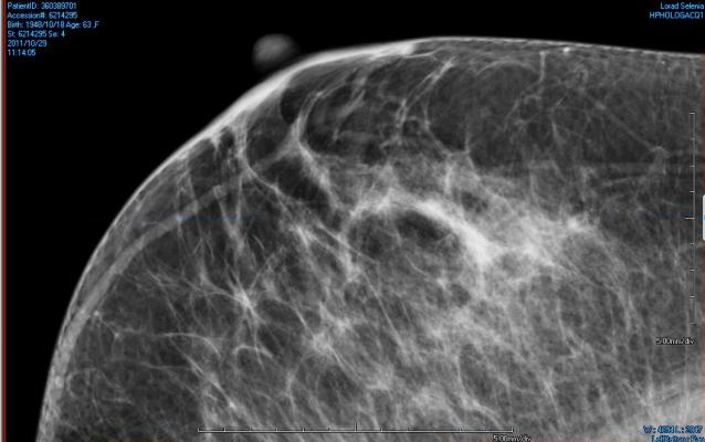 Breast Density Inform Bill Mammography Systems Women's Healthcare