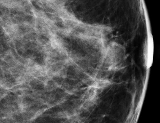 Nuclear Imaging Mammogrpahy Women's Health ICPME MBI Molecular Breast Imaging