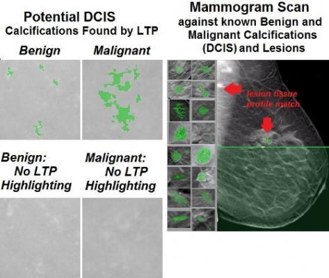 mammography, women's health