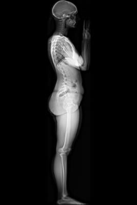 EOS Imaging Shriners Hospital Orthopedic CT Systems